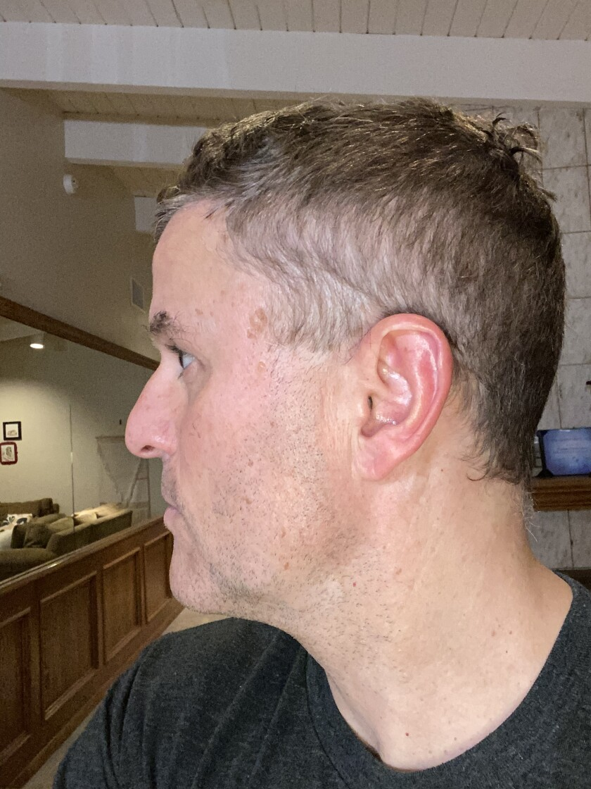 Quarantine haircut photos: Men doing it themselves, badly - Los