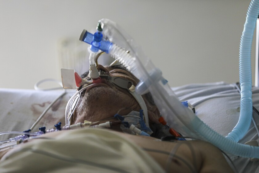 A 68-year-old coronavirus patient breathes through a ventilator at Paradise Valley Hospital in National City on July 8.