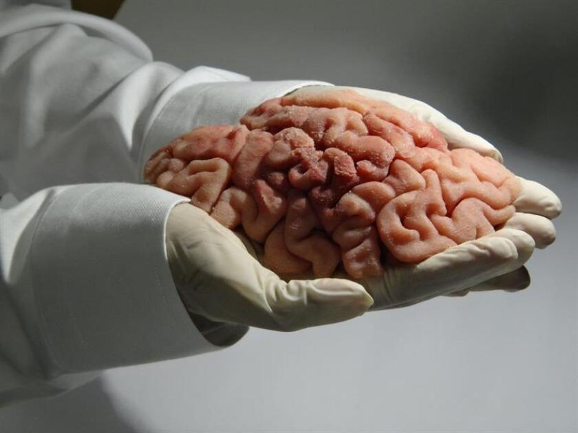 Fotografía cedida por la empresa Lazarus 3D donde se aprecia una réplica impresa en tres dimensiones (3D) de un cerebro humano utilizado para entrenar a residentes de hospitales. EFE/Lazarus 3D/SOLO USOEDITORIAL/NO VENTAS