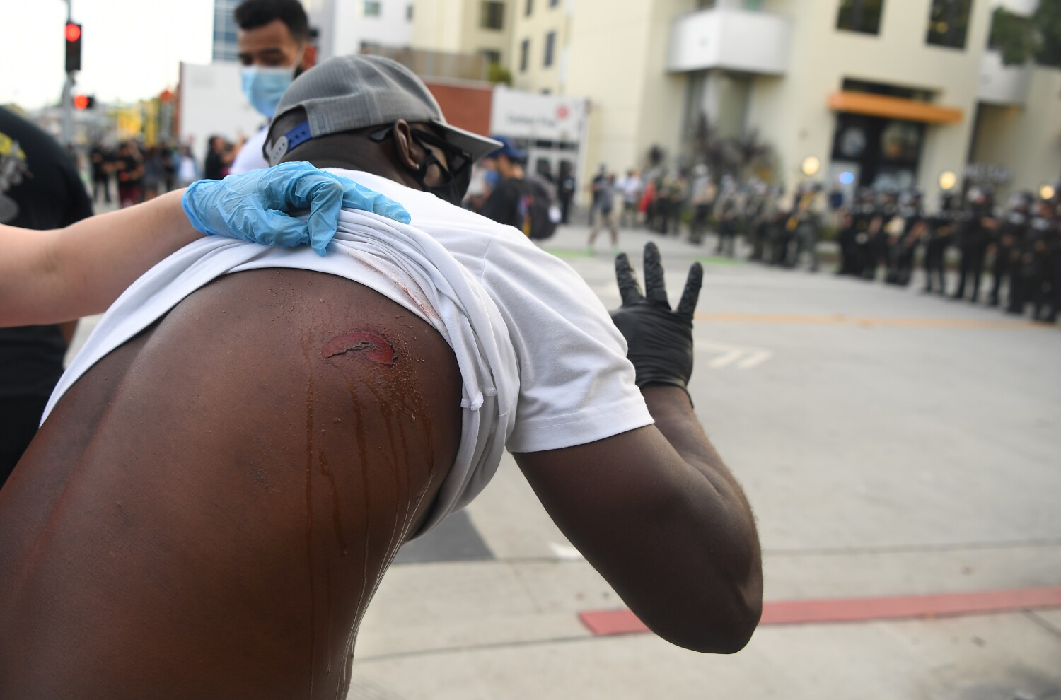 By firing rubber bullets at protesters, police risk killing, blinding or maiming...