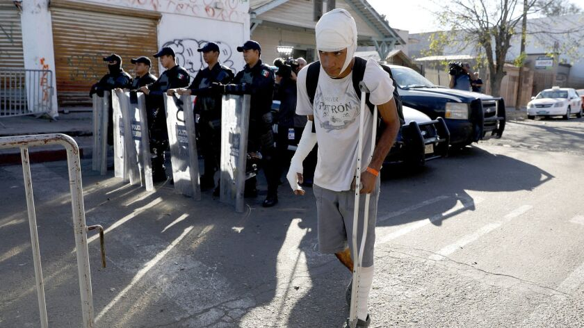TIJUANA, BAJA CALIF. -- MONDAY, NOVEMBER 26, 2018: Henry Jose Juarez, 16, of El Salvador, claims he