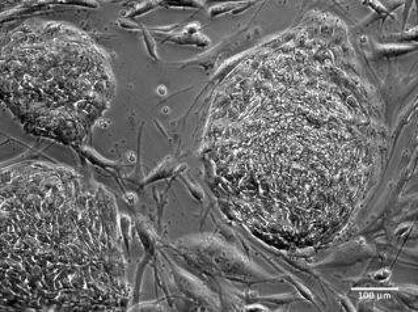 These clusters of reprogrammed human stem cells, viewed under a microscope, were among those studied by an international team of scientists led by researchers from the University of California San Diego.