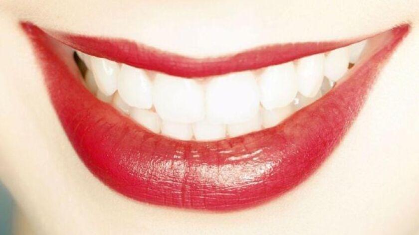 En Estados Unidos, por ejemplo, el blanqueamiento dental es uno de los procedimientos dentales más solicitados, mientras que los británicos son a menudo el blanco de bromas por sus dentaduras imperfectas.