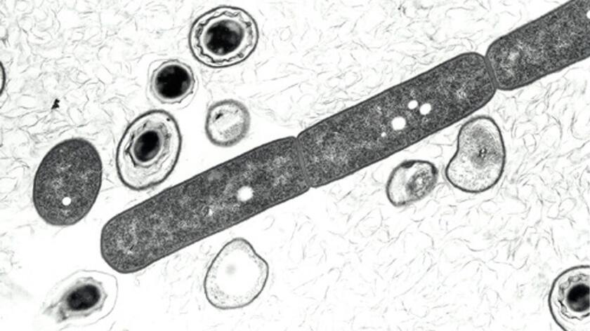 Esporas y células vegetativas de bacillus anthracis son vistas en esta microfotografía en el sitio web de información sobre el ántrax del Departamento de Defensa.