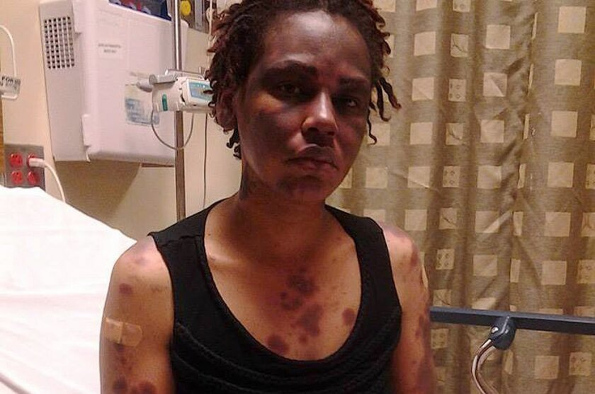 San Diego lupus patient Shakita Jones says she believes step therapy requirements prevented her from receiving the medication necessary to adequately treat the marks on her skin before they became severe.