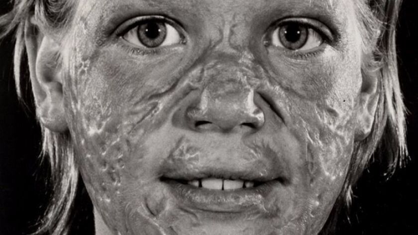 Lesia Cartelli after she was severely burned at age 9 in a gas explosion.