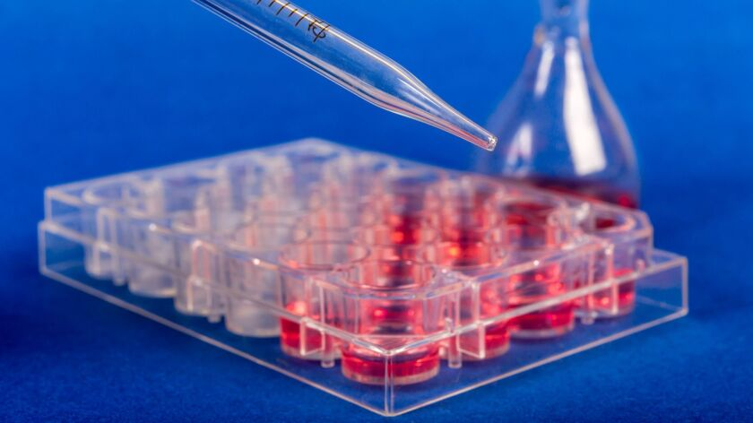 Human stem cells being prepared for a research project.