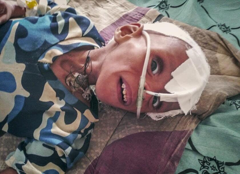 En esta imagen proporcionada de forma anónima, un niño con grave malnutrición recibe tratamiento