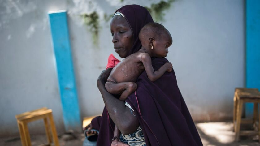 A woman holds her malnourished baby at a public health facility in the Dalaram district of Maiduguri