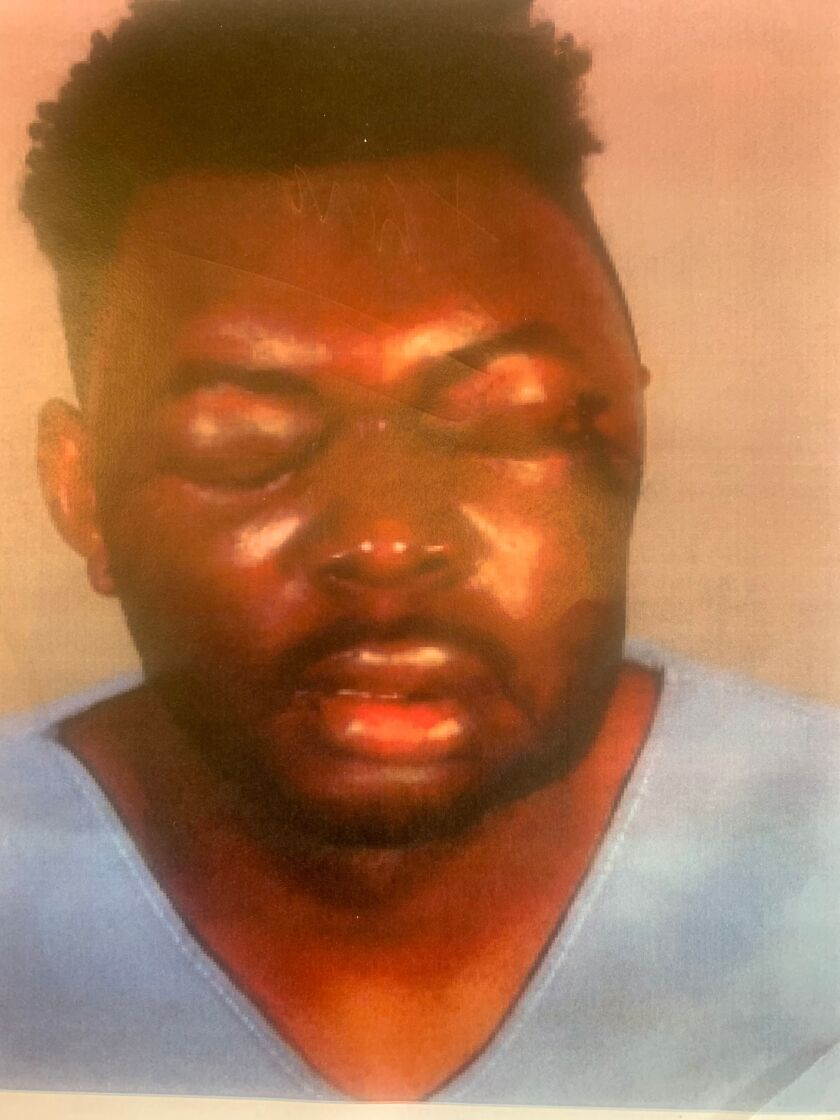 A man with closed, swollen eyes and bruises on his face