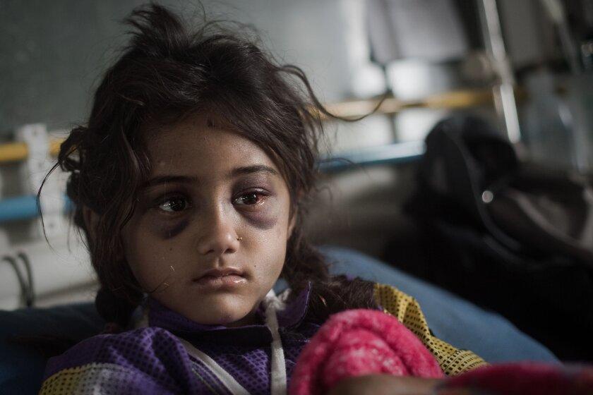 Salina Dhakal, 8, sits on her bed at the National Trauma Center hospital in Katmandu, Nepal, on April 30.