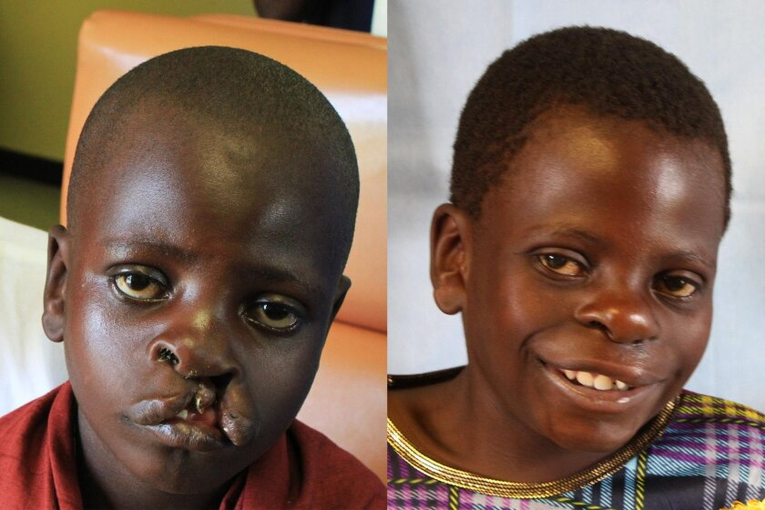 Before and after photos of a young patient with a repaired cleft palate.