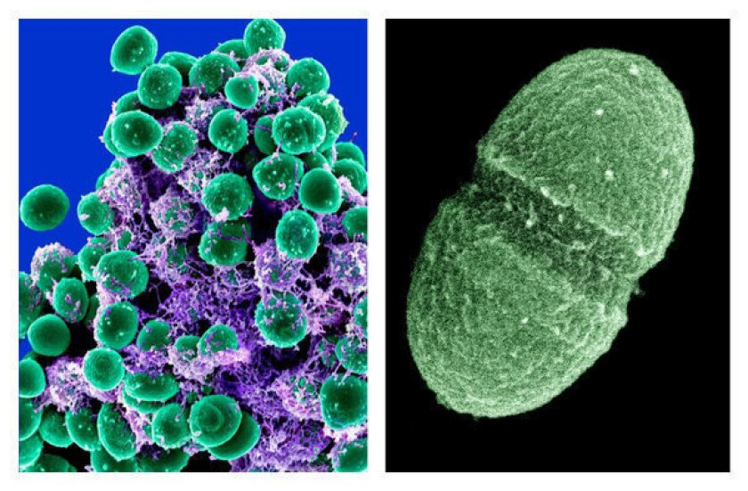 At left, an image from the National Institute of Allergy and Infectious Diseases shows a clump of Staphylococcus epidermidis bacteria (green) in the extracellular matrix, which connects cells and tissue, taken with a scanning electron microscope. At right, an image provided by the U.S. Department of Agriculture shows the bacterium Enterococcus faecalis, which lives in the human gut, just one type of microbe being studied in the Human Microbiome Project.