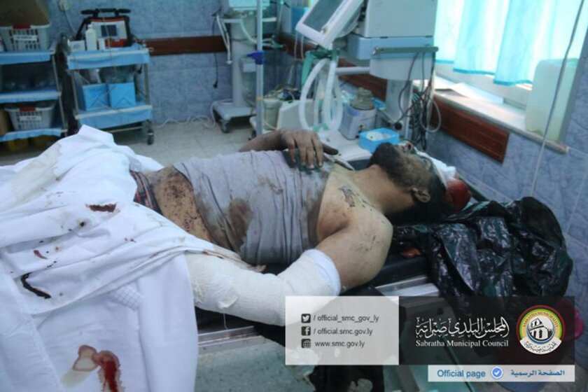 In this picture released online by the Sabratha Municipal Council on Friday, Feb. 19, 2016 a wounded man lies in a hospital after U.S. warplanes struck an Islamic State training camp in Sabratha, Libya near the Tunisian border. A Tunisian described as a key extremist operative probably was killed,