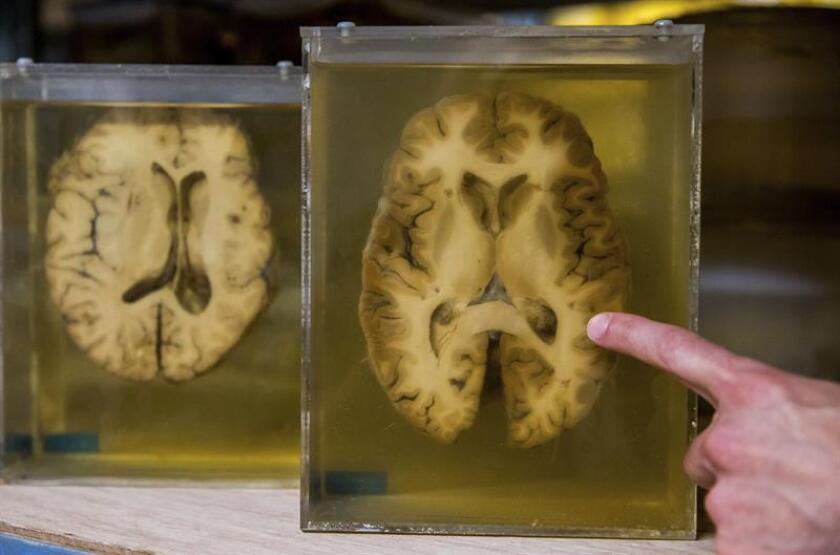Vista de una parte del cerebro tras una disección. EFE/Archivo