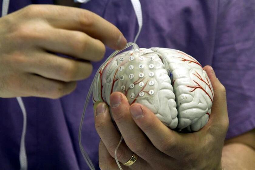 Con la edad, las personas pierden células cerebrales y el cerebro se encoge, lo que puede afectar al aprendizaje y la memoria, pero quienes siguen la dieta mediterránea mantienen más volumen cerebral, según un estudio publicado hoy en la revista Neurology, de la Academia Americana de Neurología. EFE/Miguel Rajmil