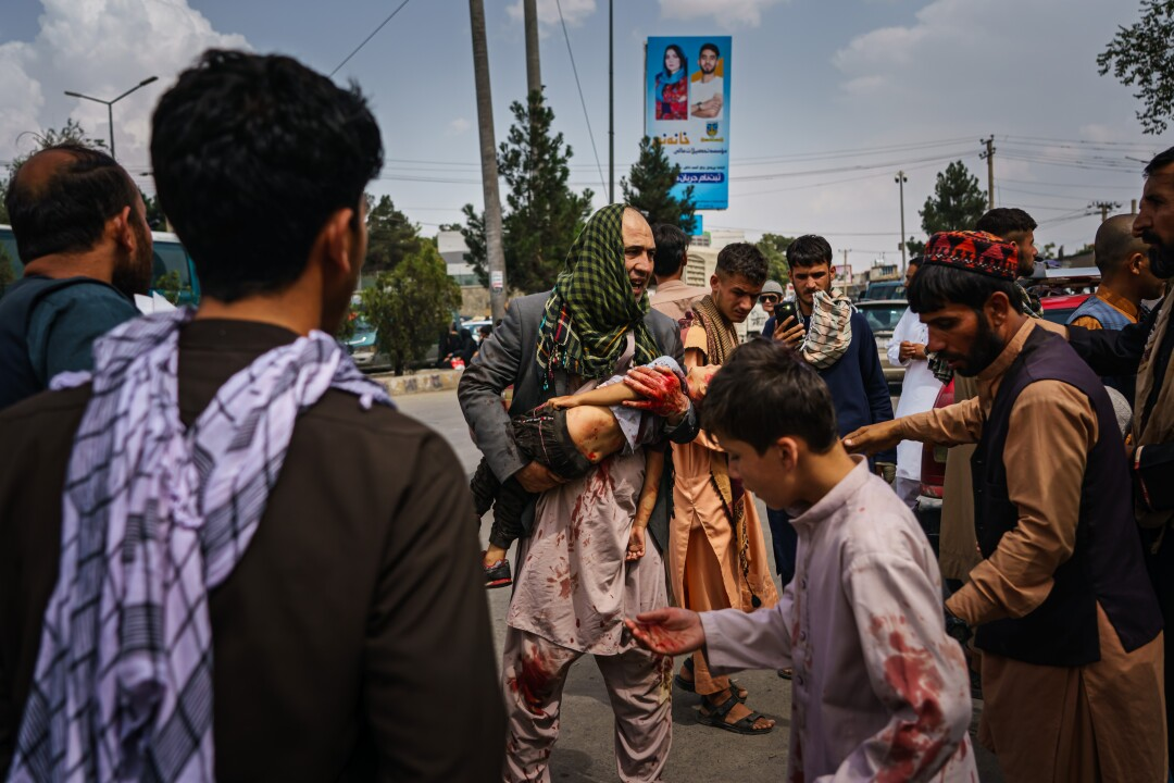 A man in a blood spattered tunic carries an injured child in his arms through a crowd