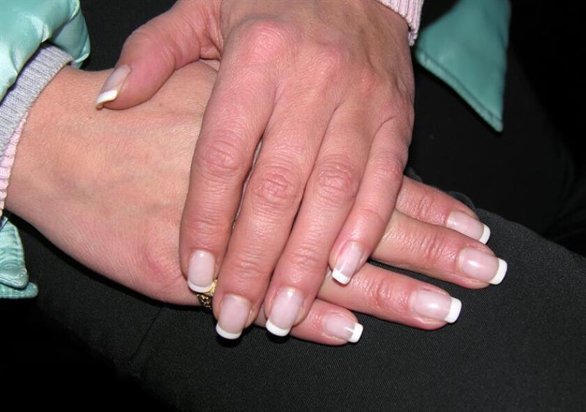 La exposición excesiva a los rayos ultravioleta (UV) que se usan para colocar el esmalte de gel en las uñas, también conocido como gelish, puede detonar la formación de células cancerígenas, advirtió hoy el doctor Raúl Rivera Márquez. EFE/Archivo