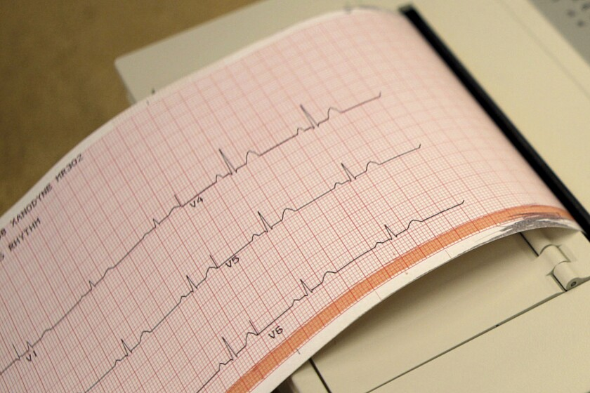 An electrocardiogram prints out results of a patient's heart exam.