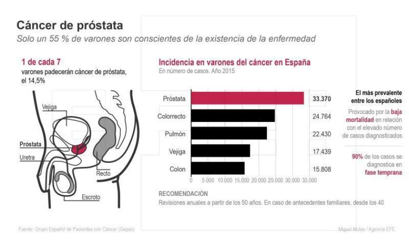 Hombres más propensos a cáncer de próstata si en familia hubo cáncer de mama
