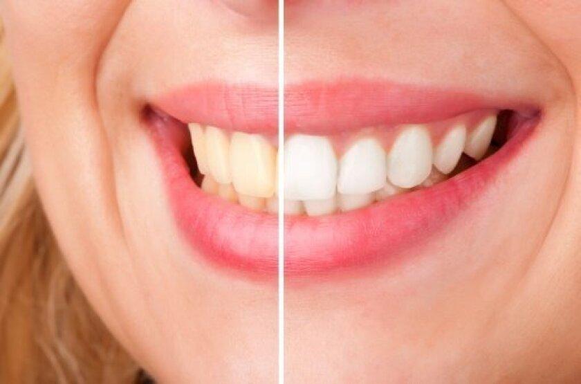 La Jolla Dental Whitening Dentist discuss the benefits of a white smile.