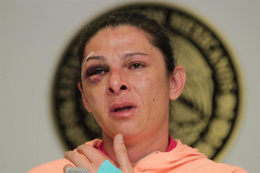 La exvelocista y ahora senadora mexicana Ana Guevara, del izquierdista Partido del Trabajo (PT) , muestra las lesiones que le fueron ocasionadas por un grupo de hombres el domingo pasado. EFE/Archivo