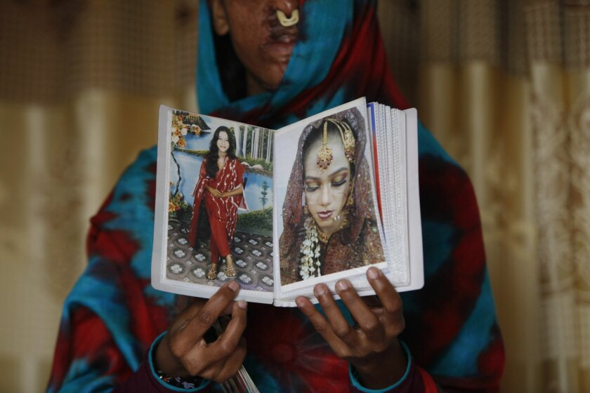 In this photo taken on Jan. 27, 2016, Sidra Kamwal shows pictures of herself before she was disfigured in an acid attack in Karachi, Pakistan. She had left her abusive husband and moved back in with her mother when another man proposed to her. The man refused to take no for an answer. He pestered h