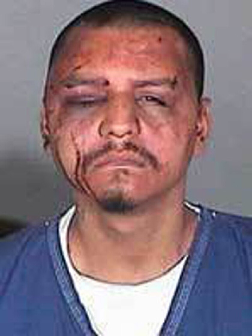 """An L.A. County jail supervisor texted this photo of Gabriel Carrillo, a jail visitor who was allegedly beaten by deputies, to a colleague, along with the message: """"Looks like we did a better job. ... Where's my beer big homie""""."""