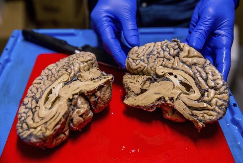 Mediante un sensor instalado en el cerebro, las personas con parálisis múltiple podrán utilizar su mente para manejar computadoras como parte de su vida diaria, según un informe publicado hoy por la Universidad de Stanford, de California. EFE/Archivo