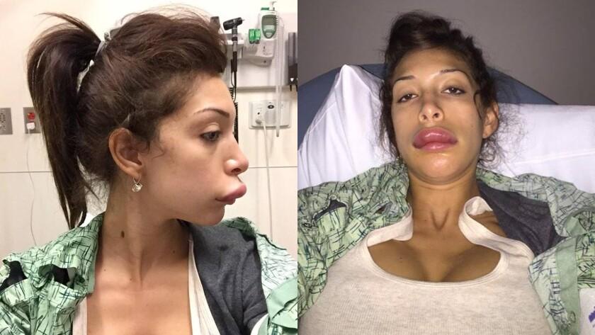 Farrah Abraham lip procedure gone wrong