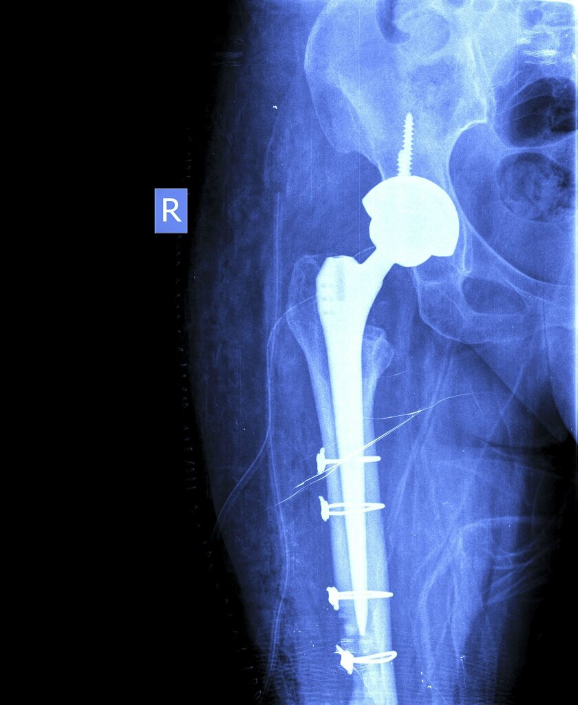 xray_hip_replacement