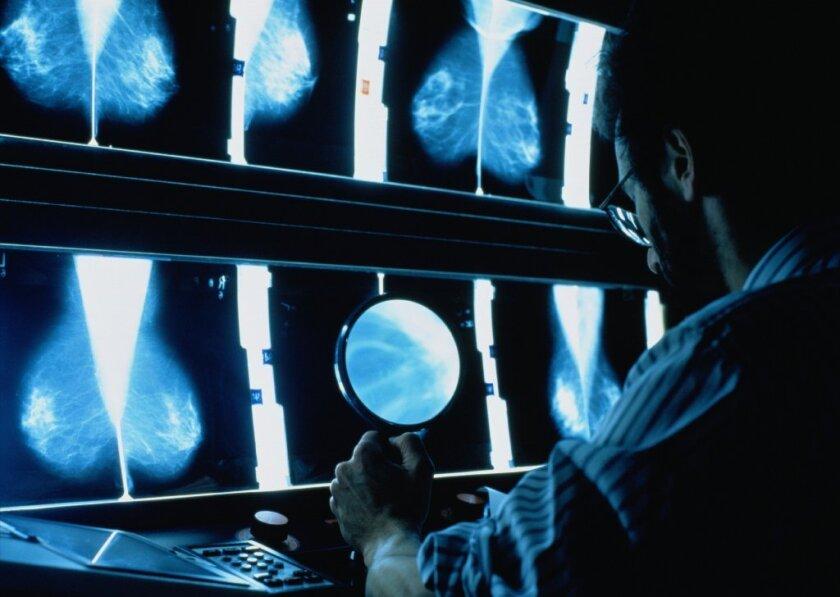 breast cancer prediction
