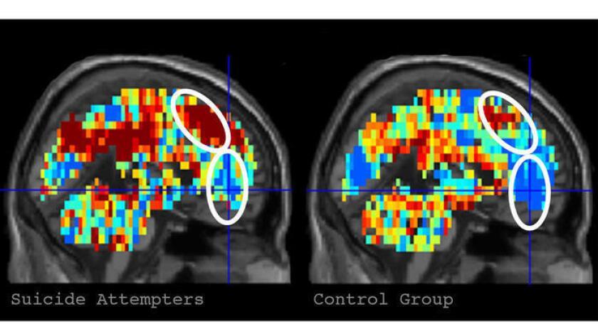 Un escáner cerebral podría predecir intentos de quitarse la vida (Universidad Carnegie Mellon).
