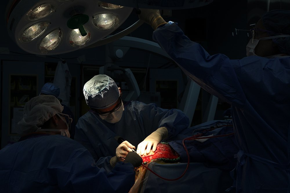 Dr. Rene Sanchez-Mejia and a surgical team at Scripps Green Hospital in La Jolla perform a hemicraniectomy, for a 40-year-old patient who suffered an ischemic stroke.