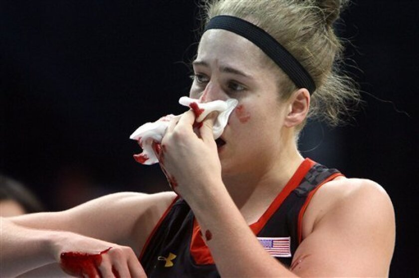 Maryland's Katie Rutan comes up bloody after defending a drive by North Carolina's Tierra Ruffin-Pratt, not pictured, during the second half of an NCAA college basketball game in Chapel Hill, N.C., Thursday, Jan. 3, 2013. North Carolina won 60-57. (AP Photo/Ted Richardson)