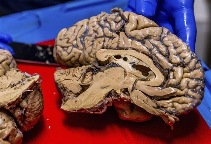 Investigadores mexicanos en conjunto con científicos de la Universidad de California Riverside desarrollaron un implante craneal que puede ayudar al tratamiento de enfermedades como el Alzheimer y Parkinson, informó hoy el Centro de Investigación y de Estudios Avanzados (Cinvestav). EFE/Archivo