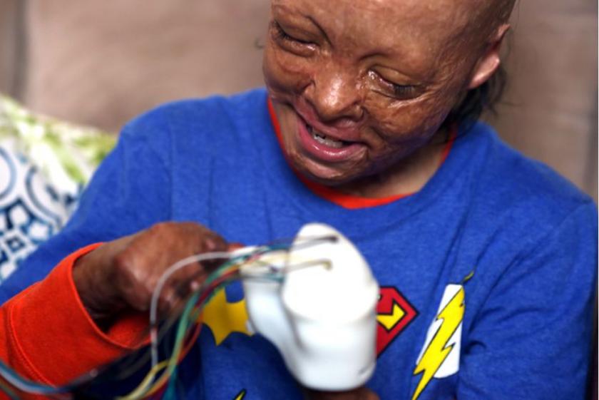 Julián Reynoso, de 10 años, se prueba una prótesis, el sábado en Los Ángeles. El niño sobrevivió a un accidente automovilístico en 2018, pero sufrió graves quemaduras y perdió nueve de sus dedos (Dania Maxwell / Los Angeles Times).