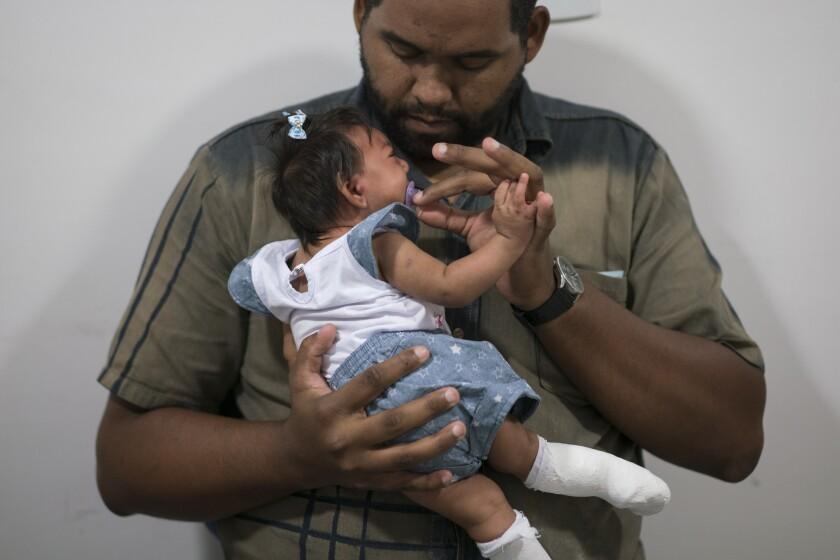Laurinaldo Alves sostiene a su hija Luana Vitoria, que padece microcefalia, en un centro de tratamiento en Recife, Brasil, 4 de febrero de 2016. (AP Foto/Felipe Dana)