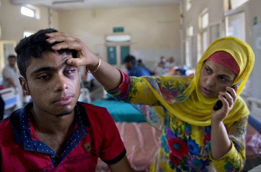 Mother of Tabish Bhat,16, whose eye was damaged after Indian government forces fired pellets at him during a protest shows his damaged eye as he rests on a hospital bed in Srinagar, Indian controlled Kashmir, Wednesday, July 13, 2016. Hospitals in India's portion of Kashmir are overwhelmed, with hu