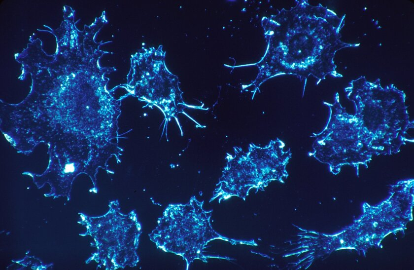 Cancer cells in culture from human connective tissue, illuminated by darkfield amplified contrast, at a magnification of 500x.