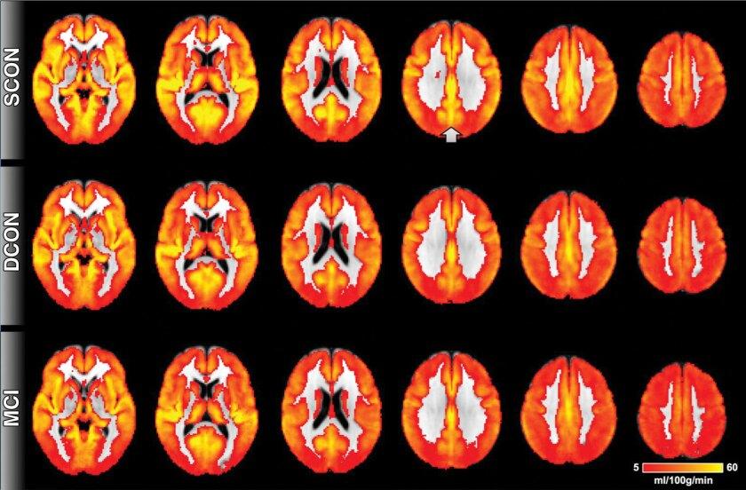 Alzheimer's biomarker