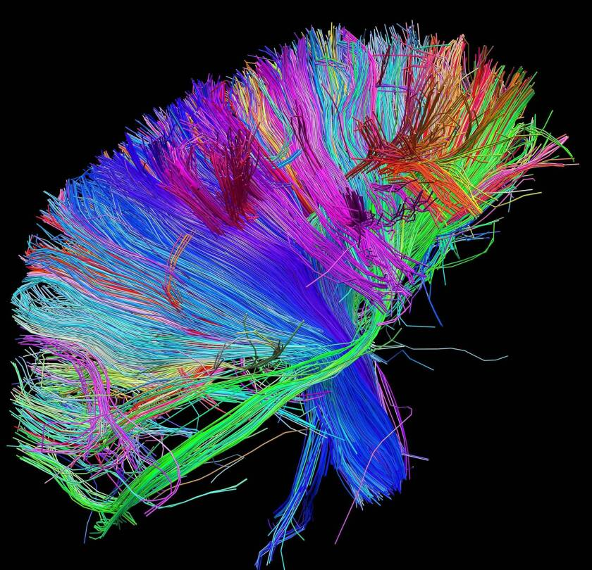 A brain scan of white matter fibers, color-coded by direction.