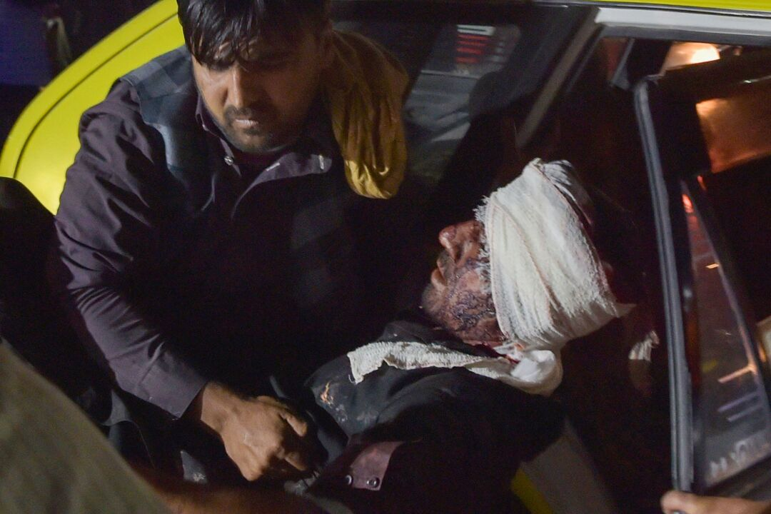 A hospital worker lifts an injured man, whose head is bandaged, out of a car for treatment