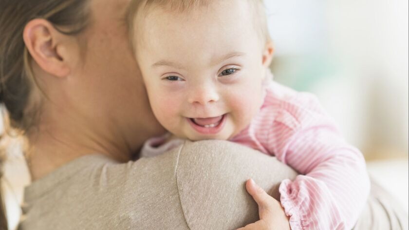 Caucasian mother holding baby girl with Down Syndrome--User Upload Caption: About 6,000 U.S. childre