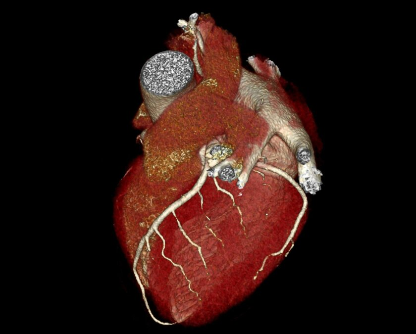 An image of the heart produced by CT scanning. / photo courtesy of UC San Diego