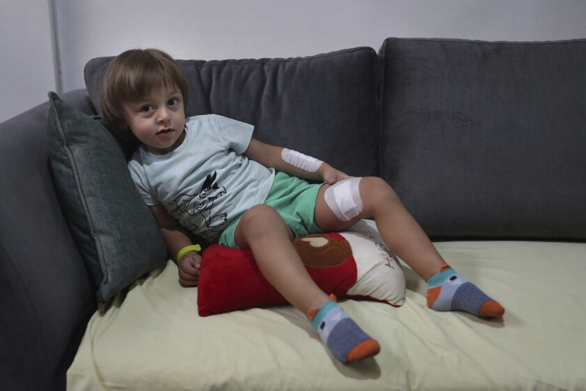 Three-year-old Abed Achi lies on a sofa at his family house in Beirut, Lebanon, Tuesday, Aug. 11, 2020. Abed was playing with his Lego blocks when the huge blast ripped through Beirut, shattering the nearby glass doors. He had cuts on his tiny arms and feet, a head injury, and was taken to the emergency room, where he sat amid other bleeding people. (AP Photo/Bilal Hussein)