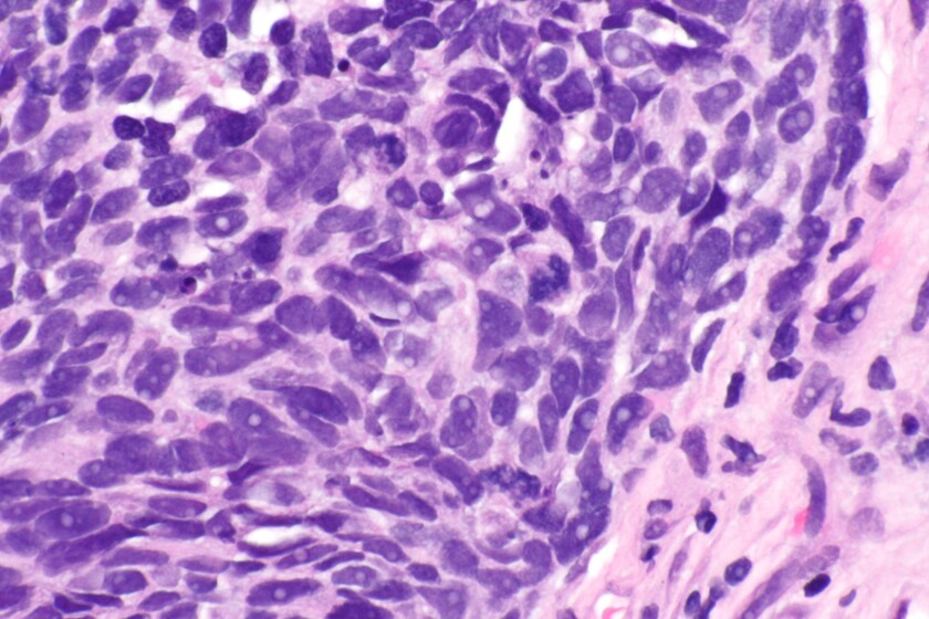 Non-small cell lung cancer cells.