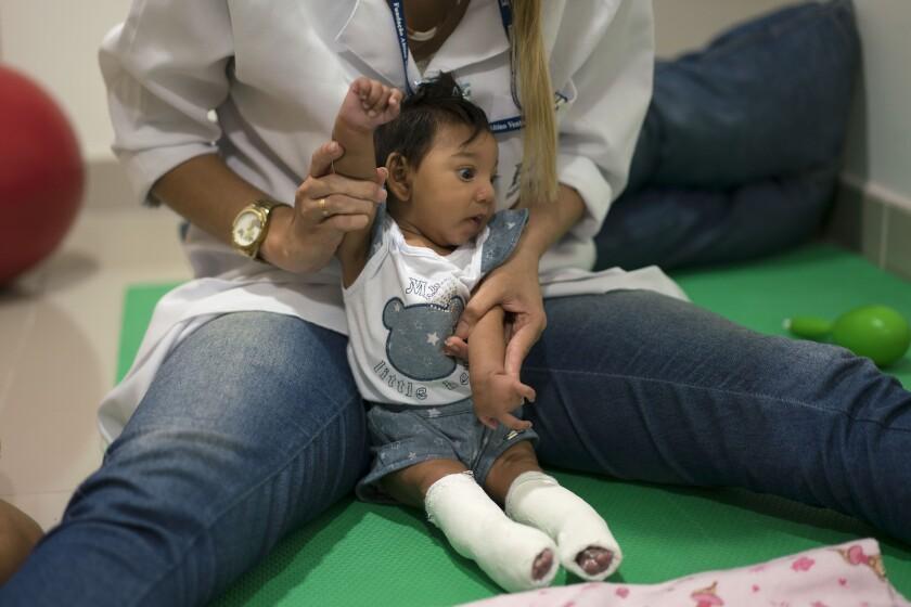 Un terapeuta trabaja con la paciente Luana Vitoria, que tiene microcefalia y utiliza unos yesos correctores de piernas, durante una sesión de estimulación física, en la Fundación Altino Ventura, un centro que provee atención gratuita de salud en Recife, estado de Pernambuco, el jueves 4 de febrero de 2016. Brasil se encuentra en medio de un brote de zika y las autoridades dijeron que han detectado un incremento en los casos de niños nacidos con microcefalia, pero que no está totalmente comprobado el vínculo entre el virus y esa malformación congénita en la cabeza. (AP Foto/Felipe Dana)