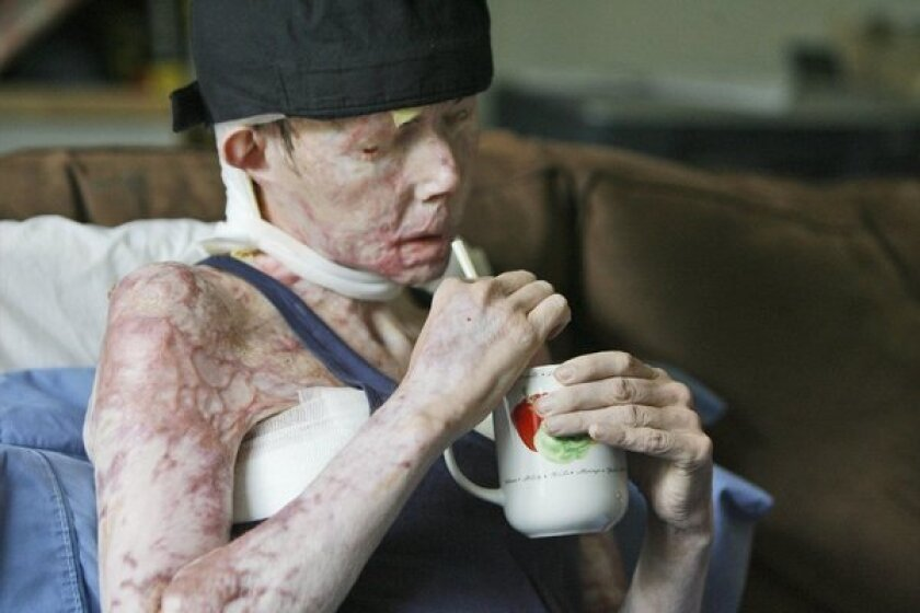 Carmen Tarleton is interviewed in her home in Thetford, Vt., in 2008. She received a face transplant this month.