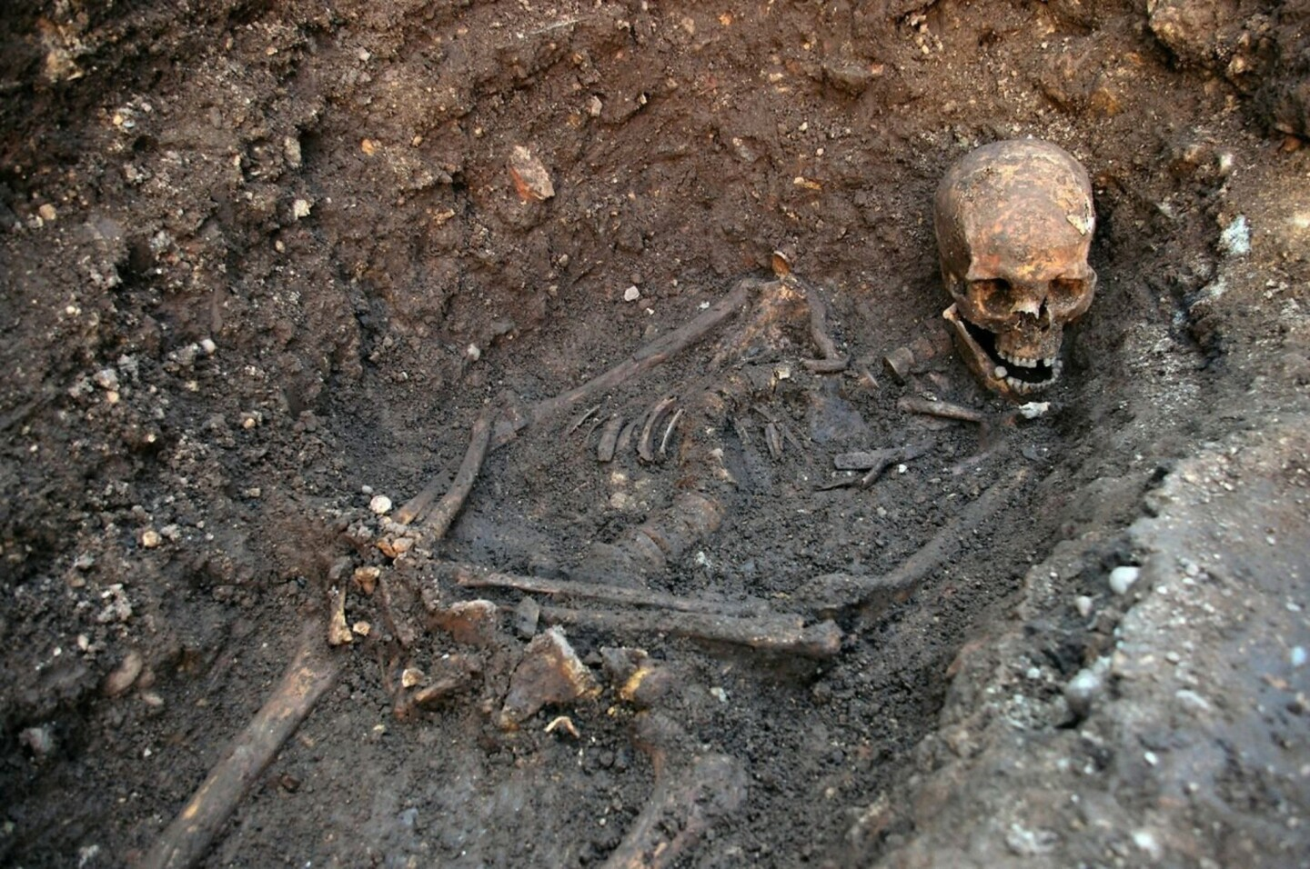 A photo released by the University of Leicester shows the skeletal remains of English King Richard III, who was killed at the Battle of Bosworth Field in 1485.